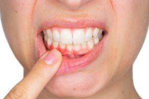 6 Tips Ampuh Hentikan Pendarahan Gusi