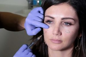 Filler, Prosedur Kosmetik Populer yang Dapat Sebabkan Kerusakan Kulit Wajah Hingga Kebutaan