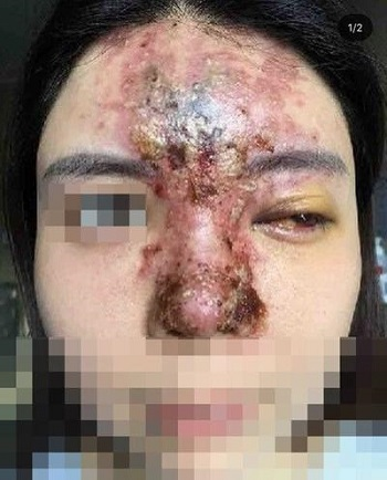 Kerusakan jaringan kulit